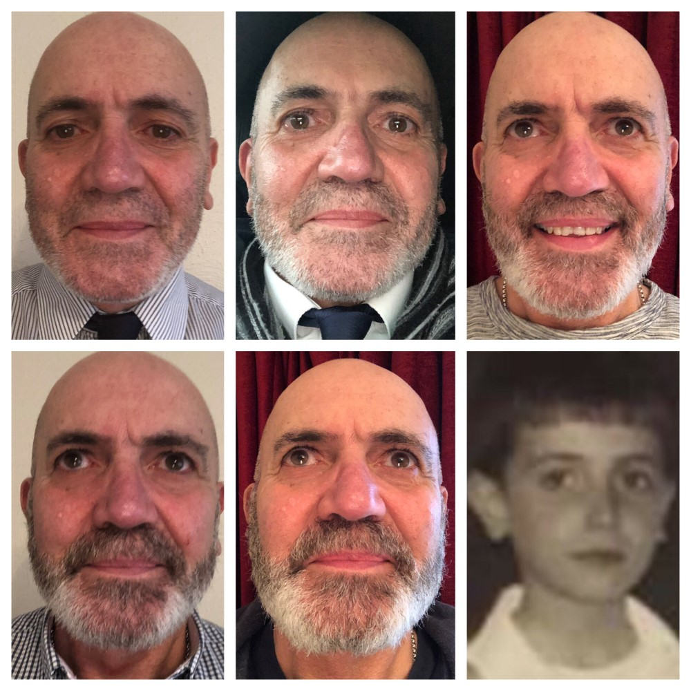 Antimo Barbieri who took part in our fundraiser, Decembeard, showing how much his beard has grown throughout the challenge