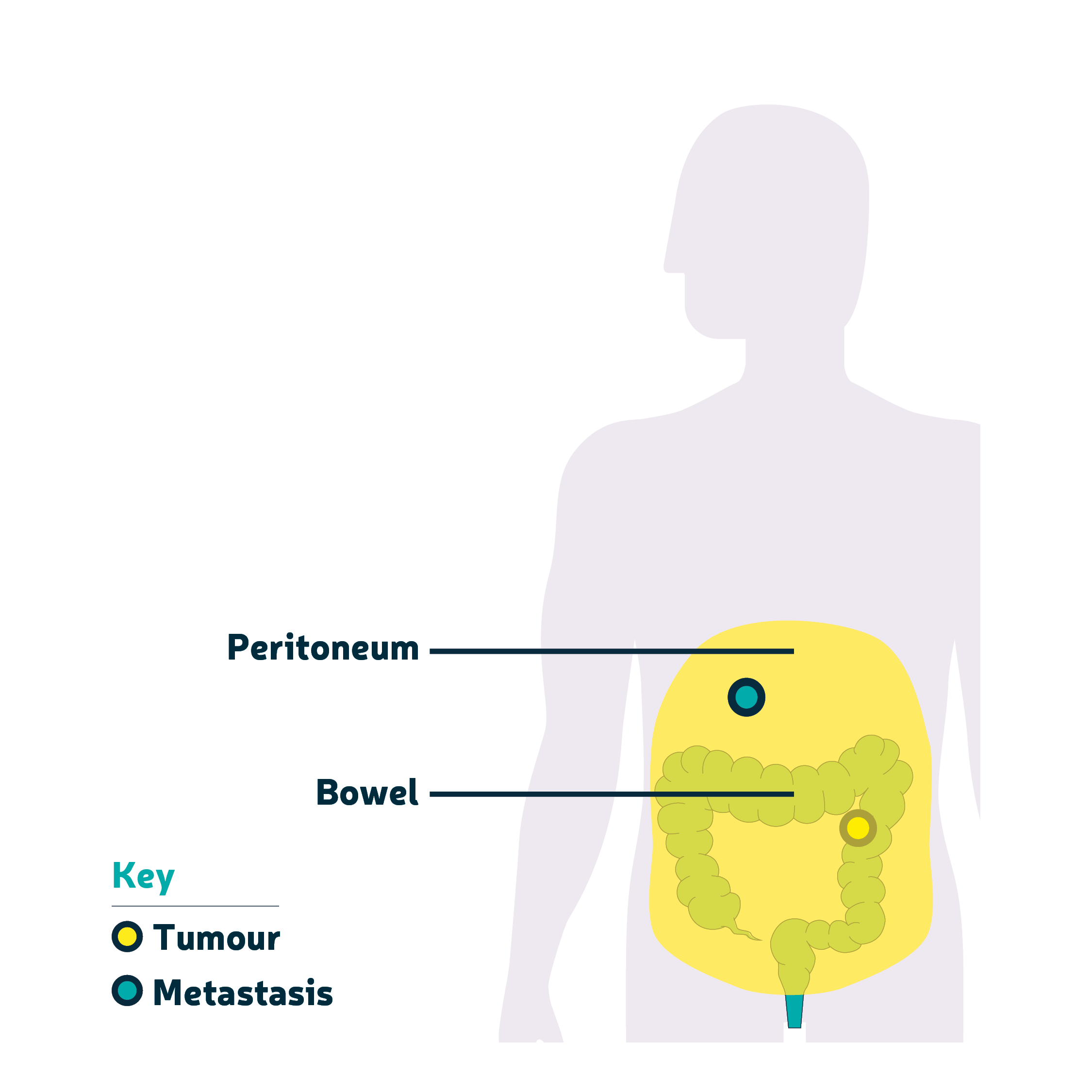 Peritoneal cancer bowel, Sarcoma cancer po polsku